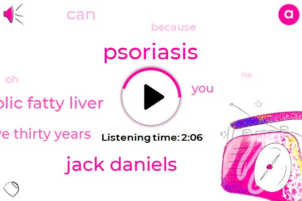 Psoriasis,Jack Daniels,Alcoholic Fatty Liver,Twenty Five Thirty Years
